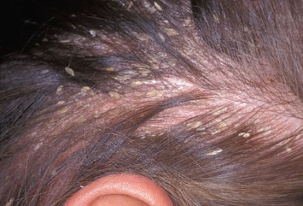 Dandruff and Other Scalp Problems