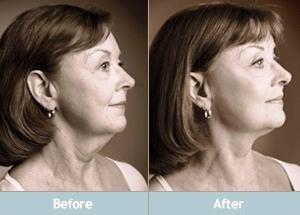 Natural Facelift Tips